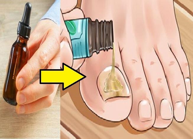 ТОП-7 как быстро вылечить ногтевой грибок